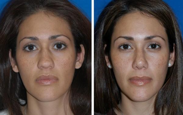 Фото до и после безоперационной ринопластики с помощью гормональных средств №1