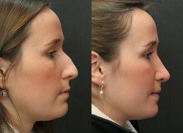 Фото до и после безоперационной ринопластики с помощью гормональных средств №2