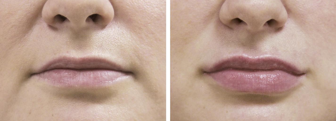 Фото до и после введения филлеров Yvoire №2