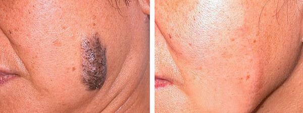 Фото до и после хирургического удаления родинки