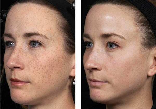 Фото до и после холодного лазерного пилинга лица