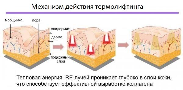 Механизм действия термолифтинга