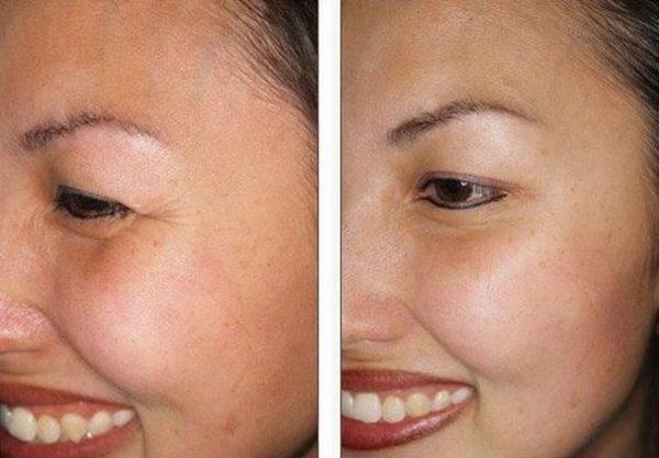 Фото до и после использования Лантокса №3