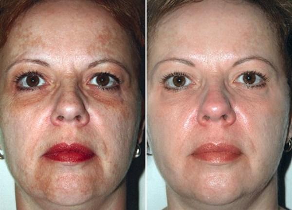Фото до и после курса процедур пилинга Джесснера №1