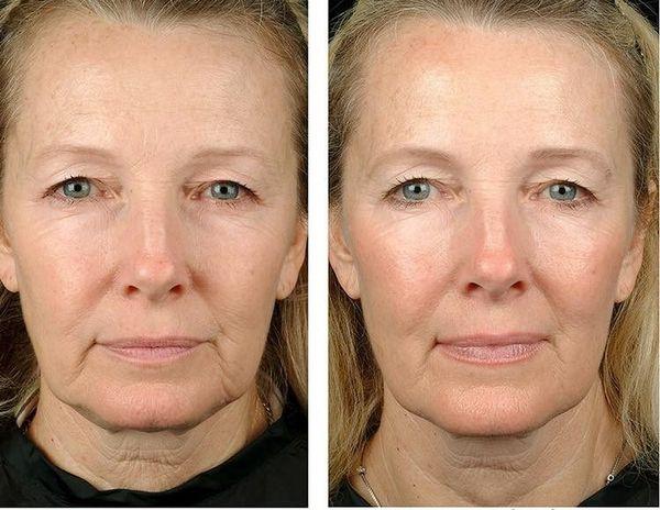 Фото до и после использования «Ювидерм гидрейт»