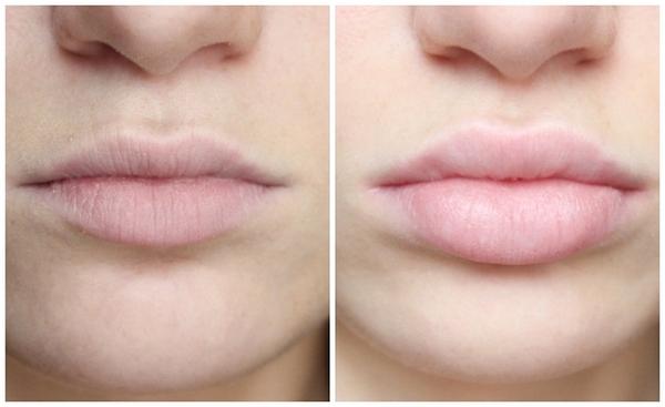 Фото до и после использования «Ювидерм ультра смайл»
