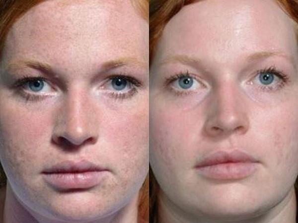 Фото до и после карбонового лазерного пилинга лица