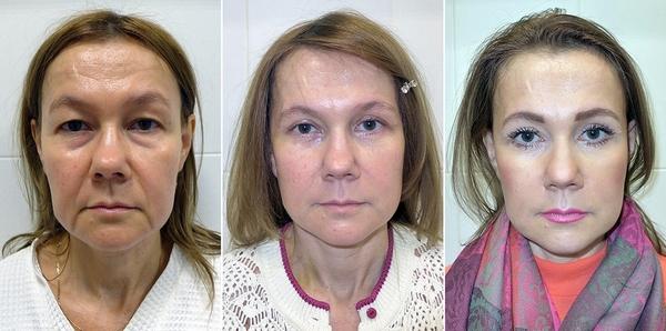Фото до и после классического СМАС лифтинга №1