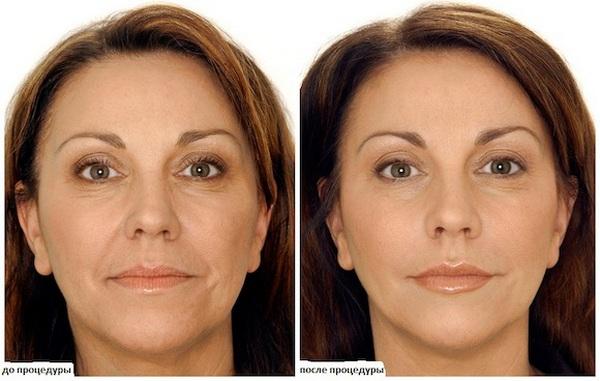 Фото до и после пилинга с использованием койевой кислоты