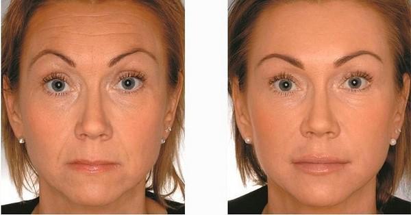 Фото до и после процедуры с использованием Ботокса