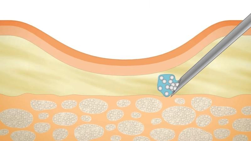 Введение филлеров способствует выравнивают рельефа кожи в проблемных зонах