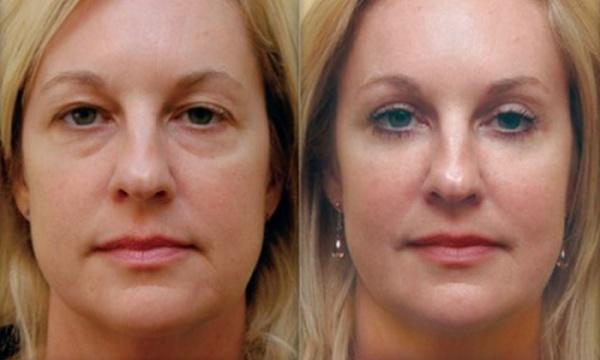 Отзывы о разных косметологических процедурах для коррекции овала лица преимущественно положительные