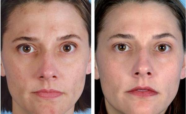 Фото до и после процедур криолифтинга для подтяжки скул
