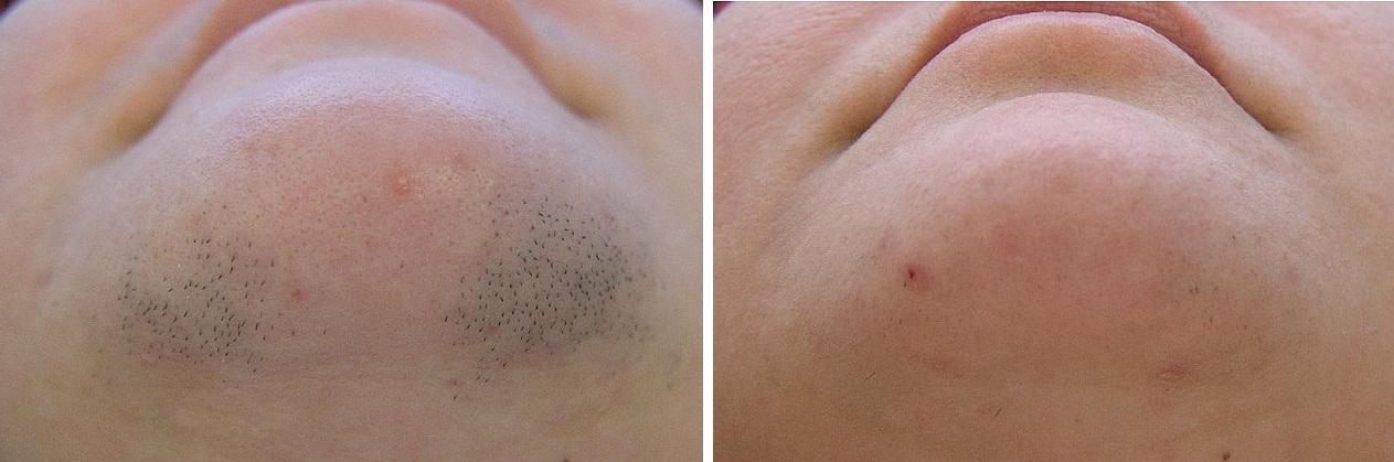Фото до и после Qool-эпиляции №2