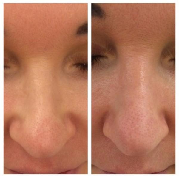 Фото до и после безоперационной ринопластики с помощью лангетки №1