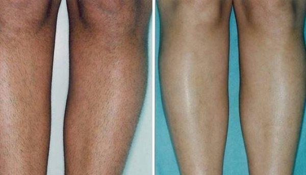 Фото до и после лазерной эпиляции №3