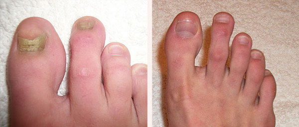 Фото до и после лечения грибка ногтей лазером №3