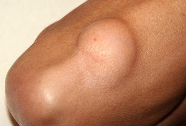Жировики редко приносят вред жизни и здоровью человека