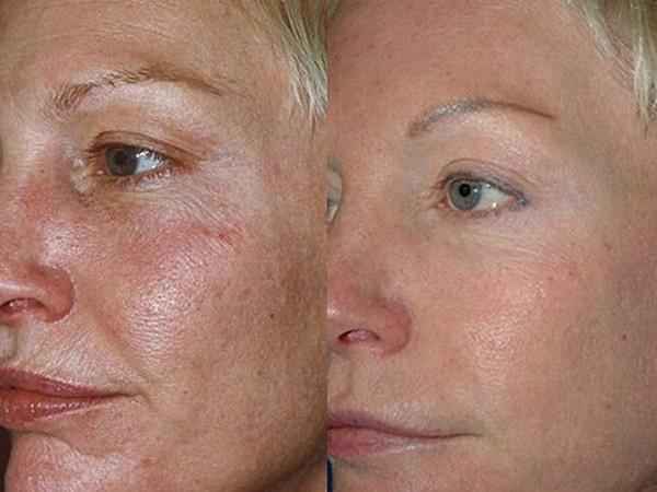 Фото до и после карбоксидного лазерного пилинга лица