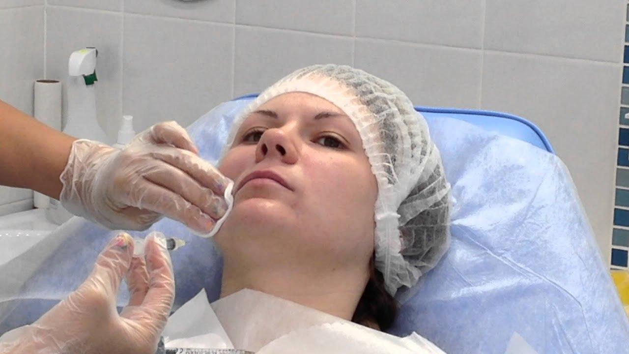 Перед введением филлеров кожу обязательно дезинфицируют