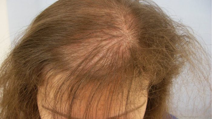 Резкое поредение волос - основной признак тотальной алопеции