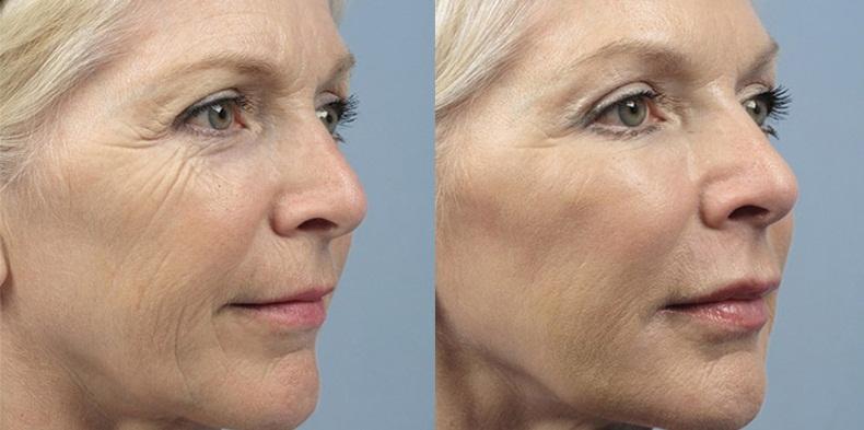 Фото до и после введения филлеров Yvoire №3