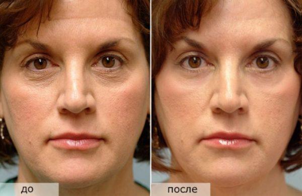 Фото до и после курса процедур лимфодренажного массажа лица №1