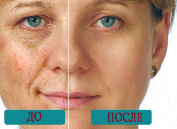 Фото до и после использования неодимового лазера для удаления пигментных пятен №1