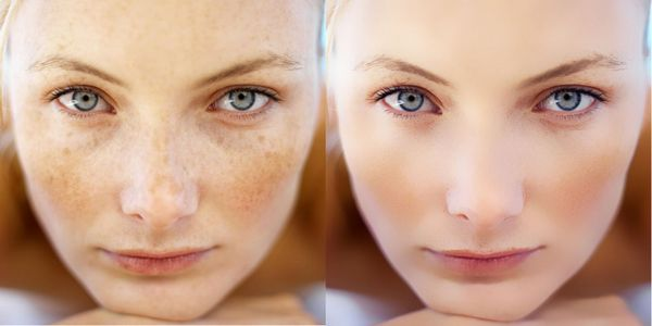 Фото до и после использования неодимового лазера для удаления пигментных пятен №2