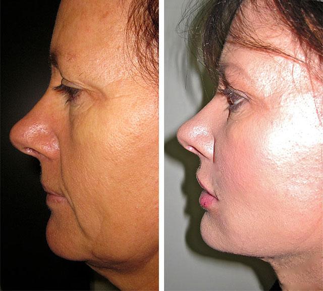 Фото до и после нитевой подтяжки лица №1