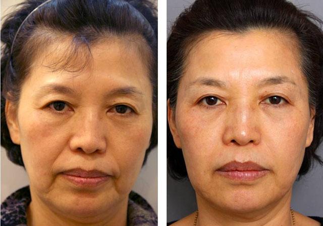 Фото до и после нитевой подтяжки лица №2