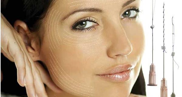 Метод заключается во вживлении в кожу особых нитей