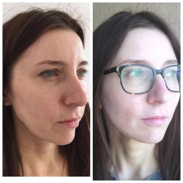 Фото до и после безоперационной ринопластики с помощью нитей №1
