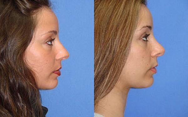 Фото до и после безоперационной ринопластики с помощью нитей №2