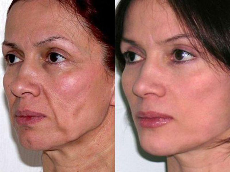 Фото до и после нитевой подтяжки лица №3
