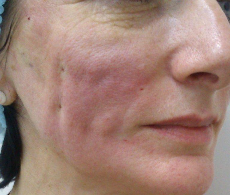 После нитевой подтяжки могут возникать рубцы и уплотнения на коже