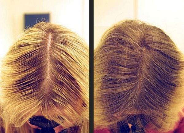 Фото до и после лечения диффузной алопеции с помощью аппарата Дарсонваля №1