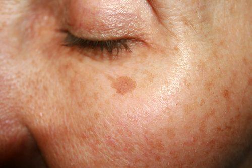 Одним из противопоказаний к введению филлеров является нарушение пигментации кожи