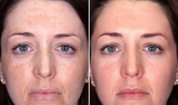 Фото до и после физического поверхностного пилинга №2