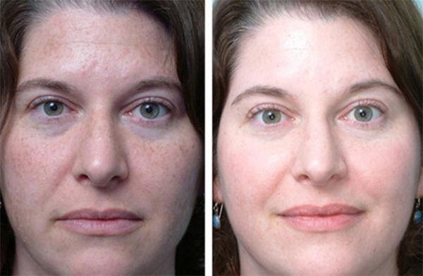 Фото до и после пилинга с использованием яблочной кислоты
