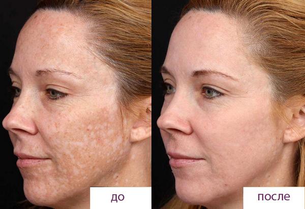 Фото до и после курса процедур пилинга Джесснера №3