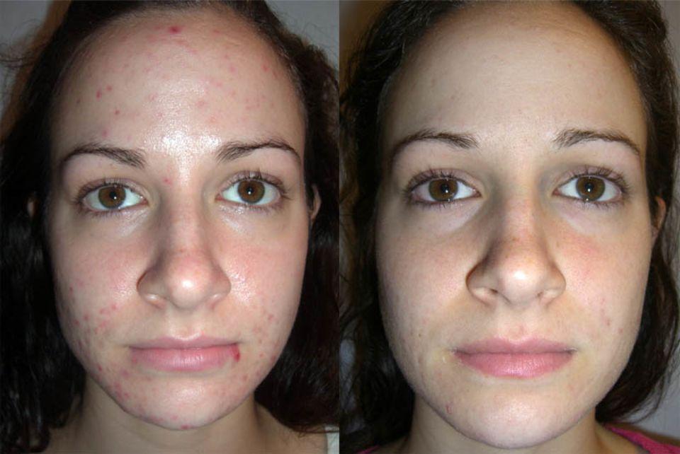 Фото до и после процедуры пируватного пилинга №2