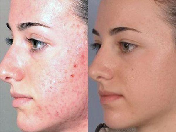 Фото до и после курса процедур пилинга Джесснера №2