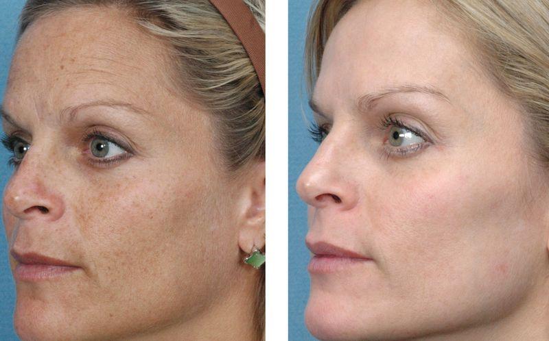 Фото до и после плазмолифтинга