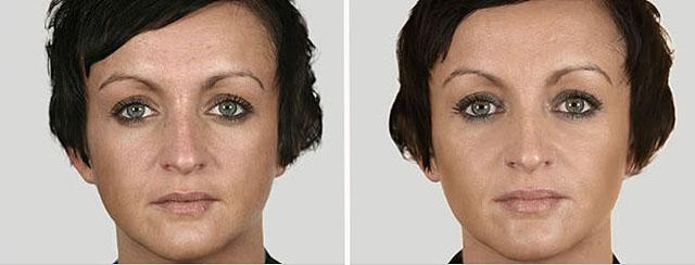 Фото до и после введения филлеров Элансе №2