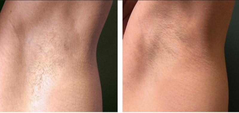Фото до и после Qool-эпиляции №3