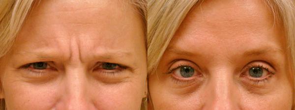 Фото до и после уколов рефайнекса №2