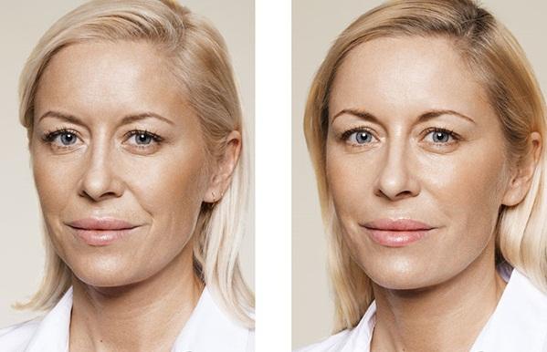 Фото до и после введения филлеров Элансе №3