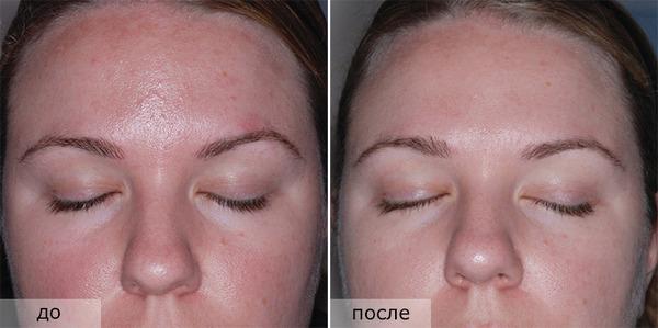 Фото до и после пилинга с использованием миндальной кислоты