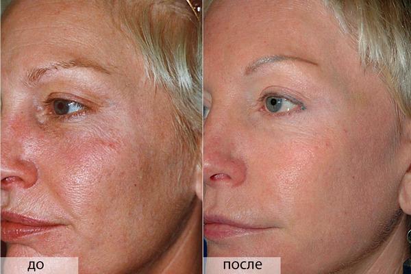 Фото до и после пилинга с использованием ретиноевой кислоты